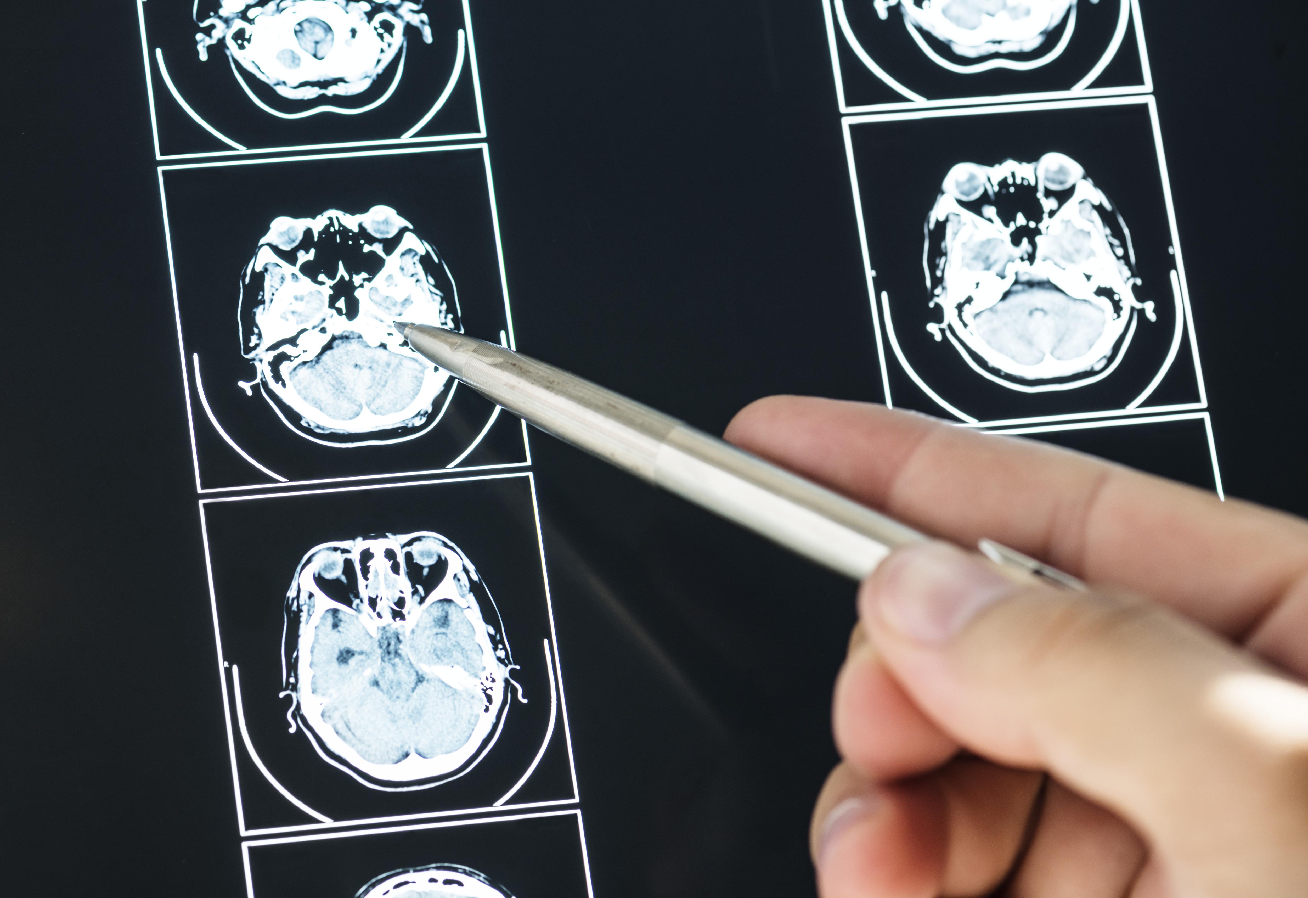 neurologia_cetep