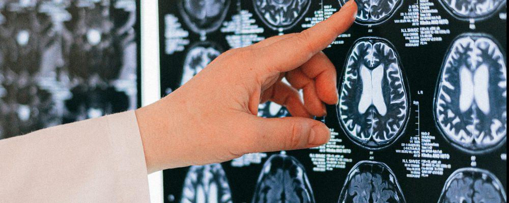 neuropsicologia-cetep